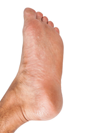 flat foot: Lap feet or flat foot isolated on white background with clipping path