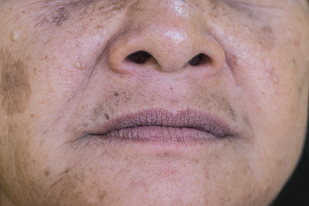 Close up mouth, nose and wrinkle of old Thai woman