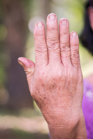 grey nails: Back hand of old asian woman with bokeh background