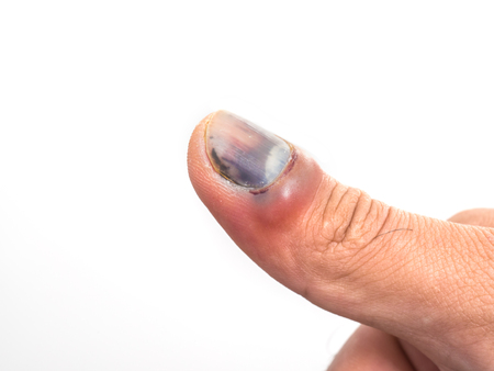 Bruise nail from accident of male hand isolated on white background