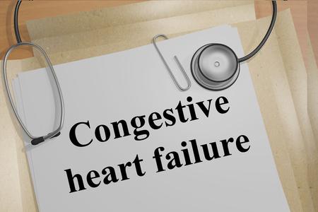 うっ血性心不全の医療ドキュメント タイトルのイラストを表示します。 写真素材