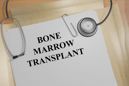 antirheumatic: Render illustration of Bone Marrow Transplant title on medical documents