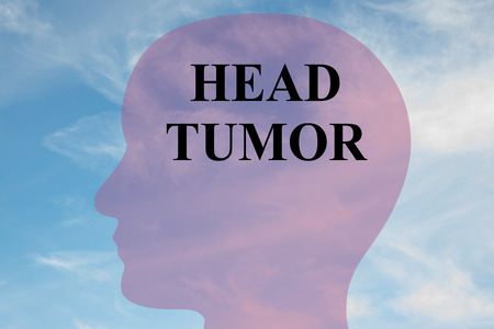 mri head: Render illustration of HEAD TUMOR script on head silhouette, with cloudy sky as a background. Human brain concept.