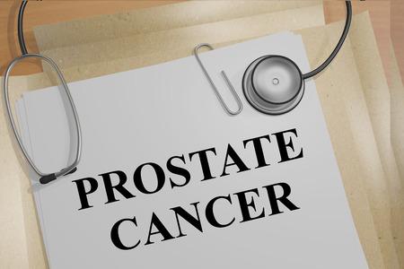 prostatic: 3D illustration of PROSTATE CANCER title on medical documents. Medical concept.