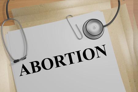 """poronienie: 3D ilustracja """"Aborcja"""" tytuł na dokumencie medycznym"""