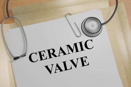 3D illustration of CERAMIC VALVE title on a medical document