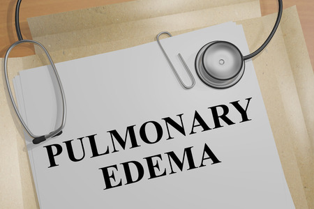 3D illustration of PULMONARY EDEMA title on a medical document