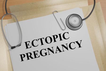 """3D-afbeelding van de titel """"ECTOPIC PREGNANCY"""" op een medisch document"""