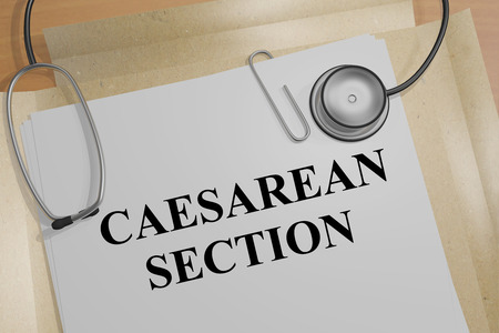 3D illustration of CAESAREAN SECTION title on a medical document