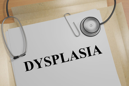 3D illustration of DYSPLASIA title on a medical document