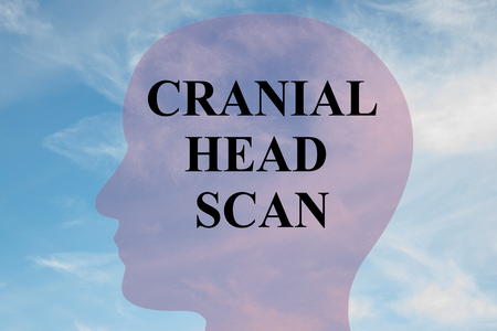 Render illustration of CRANIAL HEAD SCAN title on head silhouette, with cloudy sky as a background.