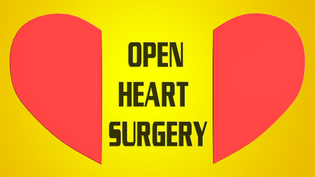 3D illustration of OPEN HEART SURGERY between red split heart, isolated on yellow gradient background Фото со стока