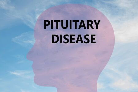Render illustration of PITUITARY DISEASE title on head silhouette, with cloudy sky as a background. Stock Photo