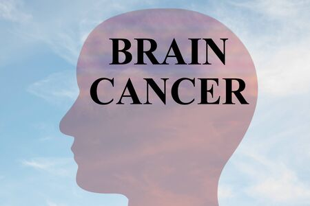 Render illustration of BRAIN CANCER title on head silhouette, with cloudy sky as a background. Imagens