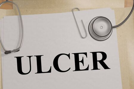 3D illustration of ULCER title on a medical document Stockfoto