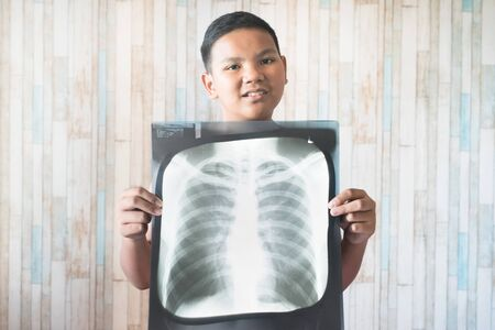 Young teen holding his x-ray film. Concept of health care