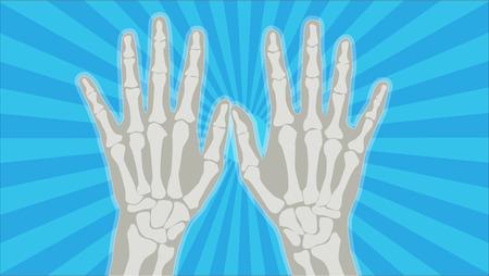 Handröntgenstrahl