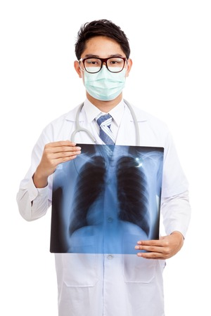 Asian male doctor wear mask  with lung x-ray film  isolated on white background