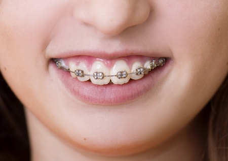 Teenage girl with the braces on her teeth is smiling photo