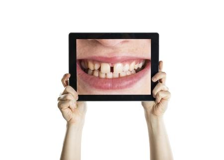 mujer fea: Primer dental con pantalla de la tablet, aislado en blanco