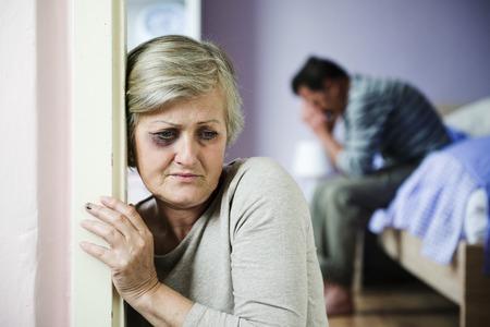 violencia intrafamiliar: Mujer madura con el ojo negro es v�ctima de la violencia dom�stica y el abuso