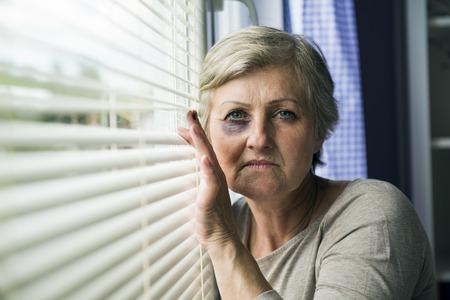 Bang vrouw kijkt door het raam hebben van blauwe plekken op haar gezicht