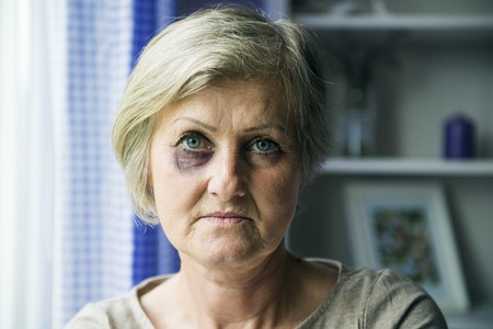 beaten woman: Senior woman with black eye is victim of domestic violence Stock Photo