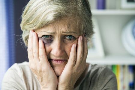 黒目で年配の女性が家庭内暴力の犠牲者です。