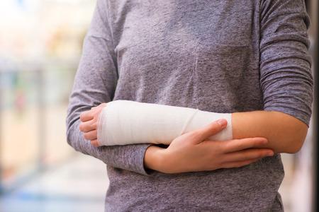Onherkenbaar vrouw met een gebroken arm binnenkant van een winkelcentrum Stockfoto