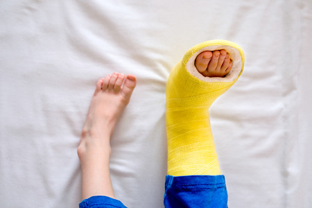 Broken leg in cast of unrecognizable little boy sitting on bed. Stock Photo