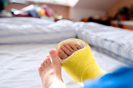 ベッドの上に座って認識できない少年のキャストに足の骨折。
