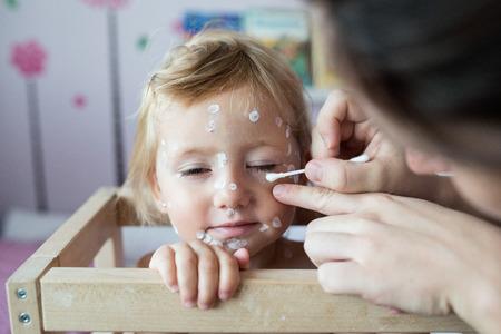 varicela: Niña de dos años en casa enfermo con varicela, blanco crema antiséptica aplicado por su madre a la erupción