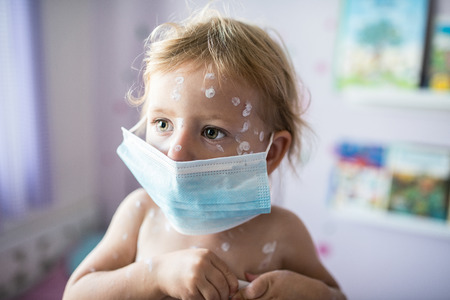 Little two year old girl at home sick with chickenpox, white antiseptic cream applied to the rash Stock Photo