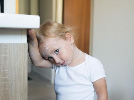 varicela: Niña de dos años en casa enfermo con varicela, blanco crema antiséptica aplicada a la erupción