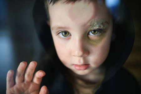 Poor sad small boy with cut eyebrow standing indoors at home, poverty concept. Standard-Bild