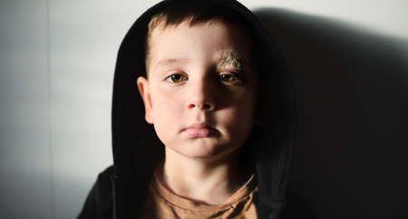Poor sad small boy with cut eyebrow standing indoors at home, poverty concept. 免版税图像