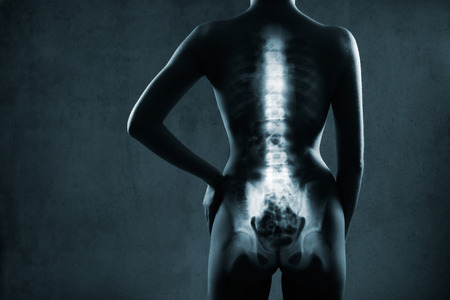 spine surgery: Human backbone in x-ray, on gray background