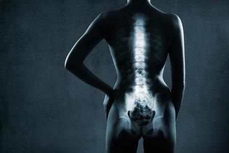 X 線は、灰色の背景上で人間のバックボーン