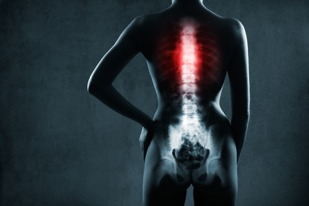 radiological: Human spine in x-ray, on gray background. The chest spine is highlighted by red colour. Stock Photo