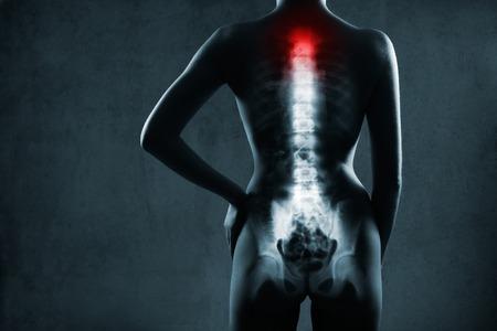 Human spine in x-ray, auf grauem Hintergrund. Die Halswirbelsäule wird durch rote Farbe hervorgehoben.