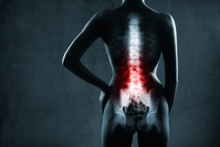 esqueleto: Columna vertebral humana en vista de rayos x, en el fondo gris, la columna lumbar está resaltada en color rojo Foto de archivo