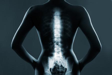 cuerpo humano: Espina dorsal humana en rayos x, sobre fondo gris Foto de archivo