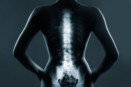 columna vertebral: Espina dorsal humana en rayos x, sobre fondo gris Foto de archivo