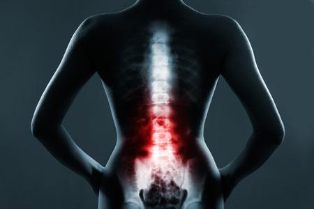 columna vertebral: Columna vertebral humana en rayos x, sobre fondo gris. La columna lumbar está resaltada en color rojo. Foto de archivo