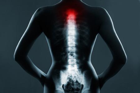 columna vertebral: Columna vertebral humana en rayos x, sobre fondo gris. La columna vertebral del cuello est� resaltada en color rojo.