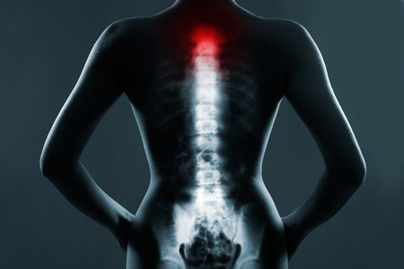 radiological: Human spine in x-ray, on gray background. The neck spine is highlighted by red colour.