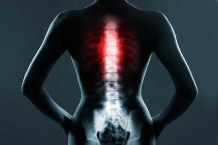 spine surgery: Human spine in x-ray, on gray background. The chest spine is highlighted by red colour. Stock Photo