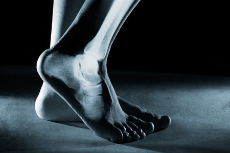 Menschlicher Fuß Knöchel und Bein in x-ray, auf grauem Hintergrund