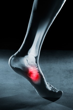 radiological: Human foot ankle and leg in x-ray, on gray background. The foot ankle is highlighted by red colour. Stock Photo
