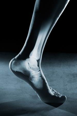 radiological: Human foot ankle and leg in x-ray, on gray background